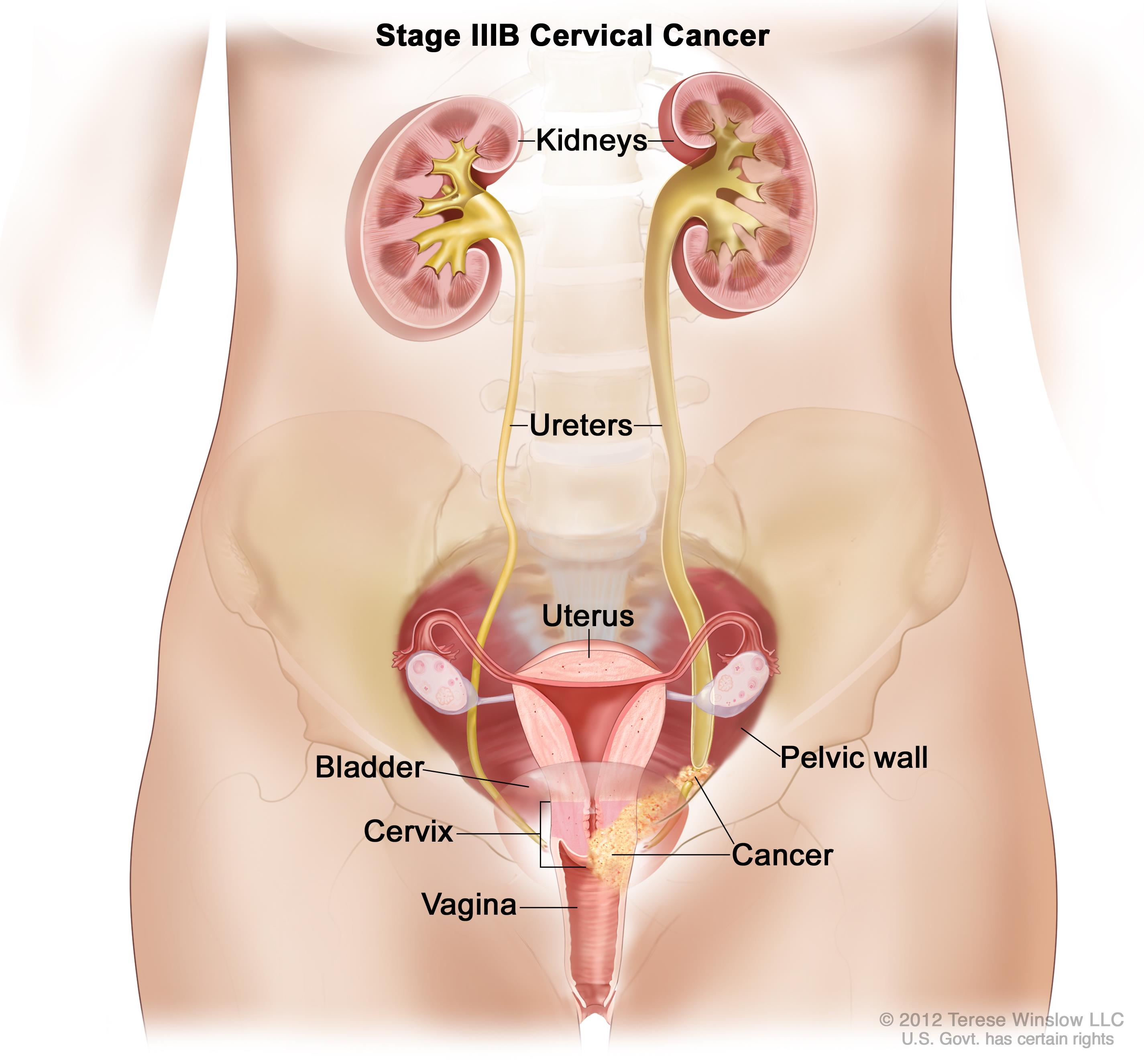 Ovarian Cancer Possible After Hysterectomy Healthinfi