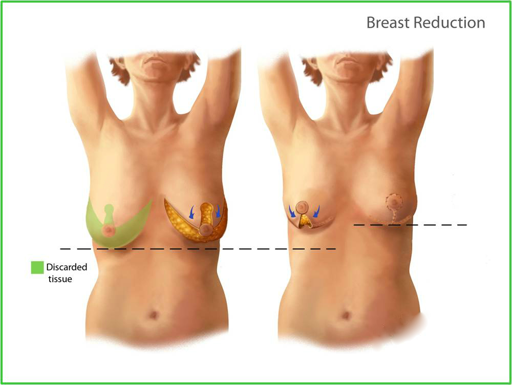 Breast Augmentation And Reduction Healthinfi
