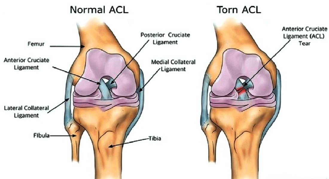 Complete Acl Tear Diagram - Wiring Library •