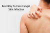 Best Way To Cure Fungal Skin Infection